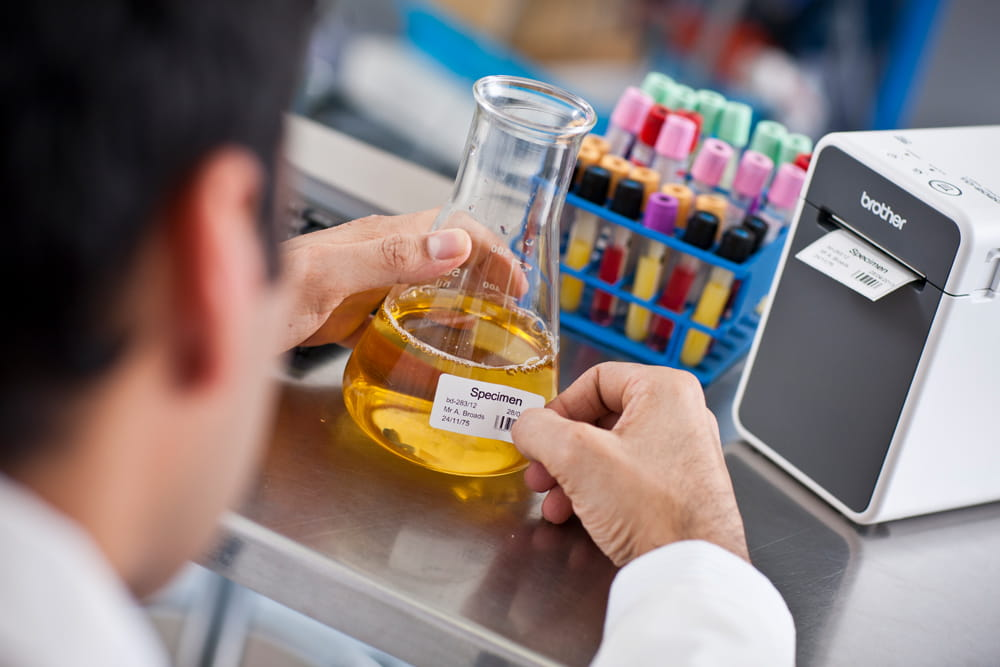 Laboratorietekniker fester en merkelapp på en beholder med en prøve