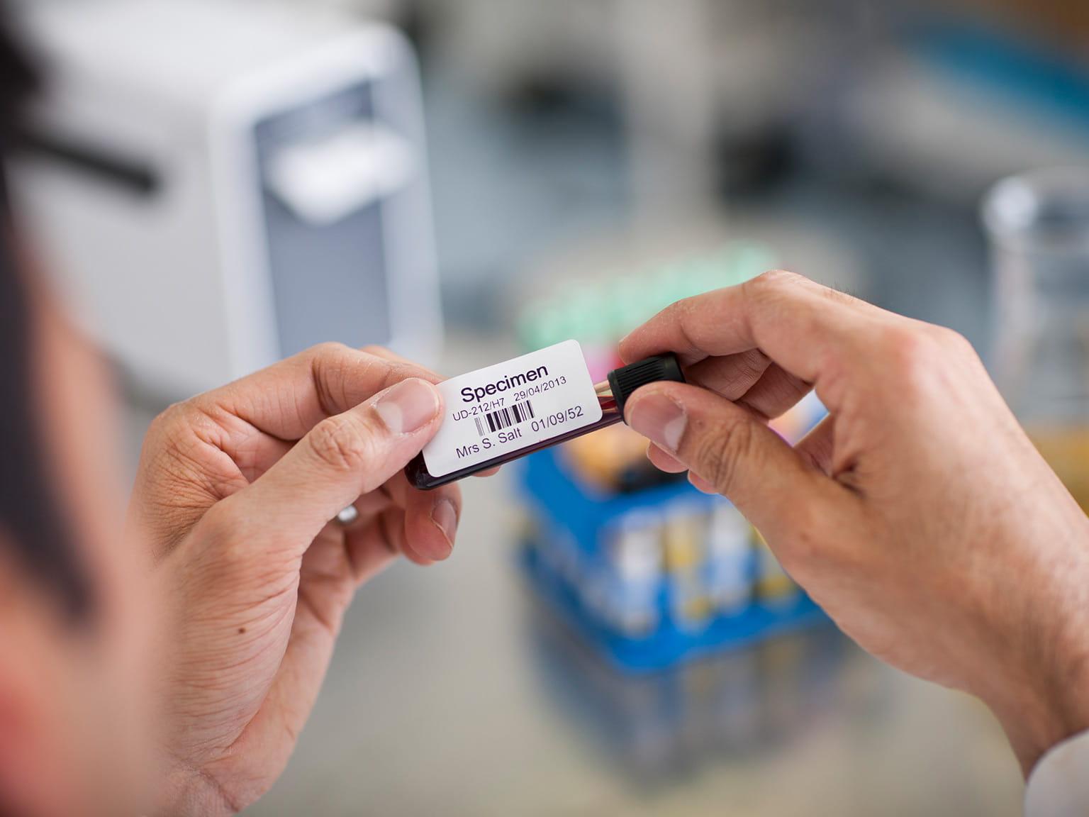 Merkelapp på blodprøve